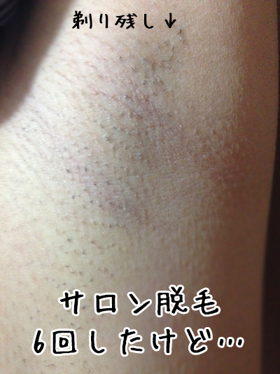 脇 脱毛 湘南 湘南美容クリニックの脇脱毛は5回で足りる?【3人の口コミ】から脱毛効果を調査! |